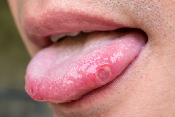 tongue with ulcers of adult man tongue with ulcers of adult man tongue stock pictures, royalty-free photos & images