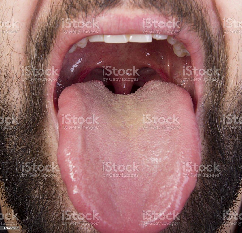 tonsil stock photo