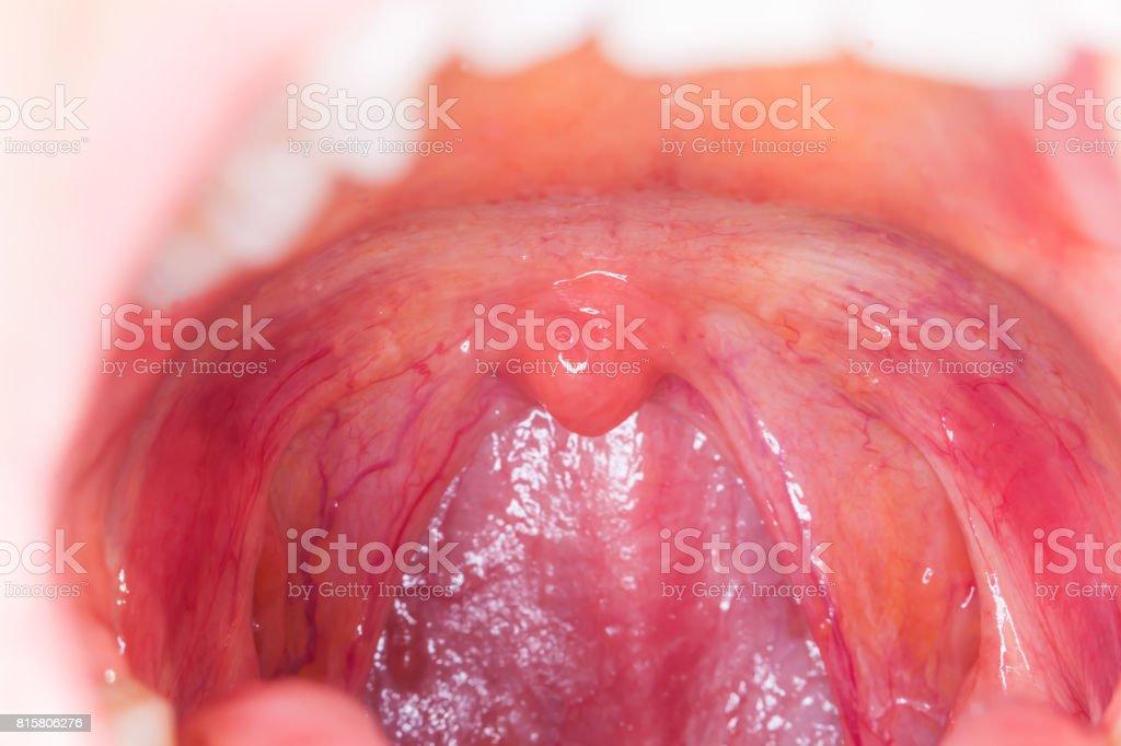 Fotografía de Abierto De Amigdalitis Infección Throatmacro Amígdalas ...