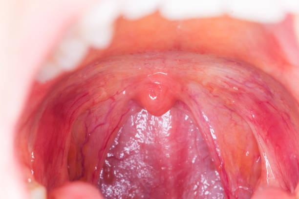 throat.macro infection amygdalite ouvert amygdales gorge bouche - palais buccal photos et images de collection