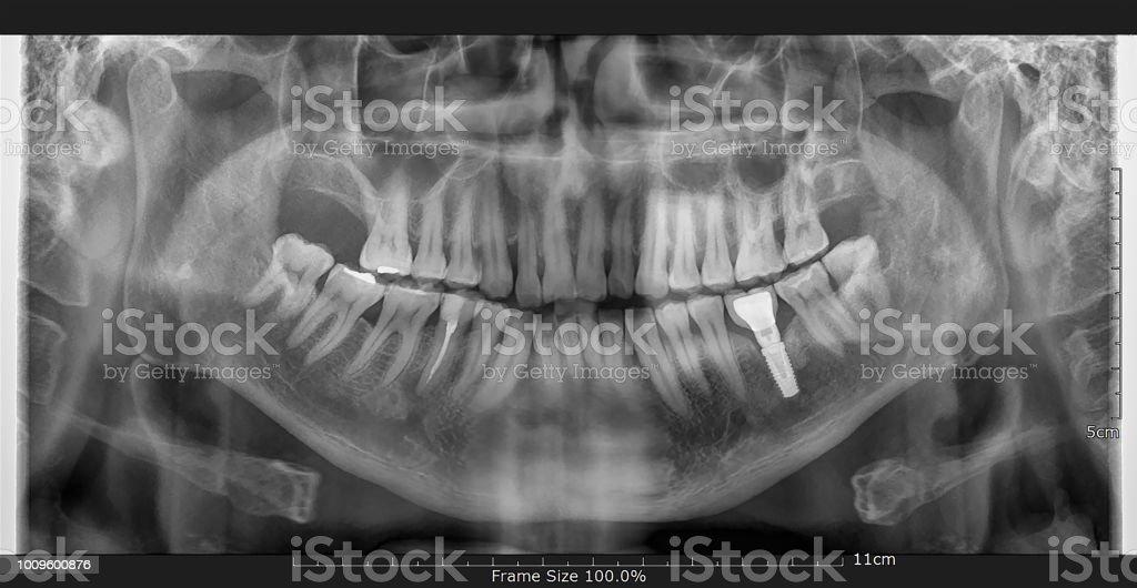 Fotografía de Diente Y El Implante Dental Rayos X y más banco de ...
