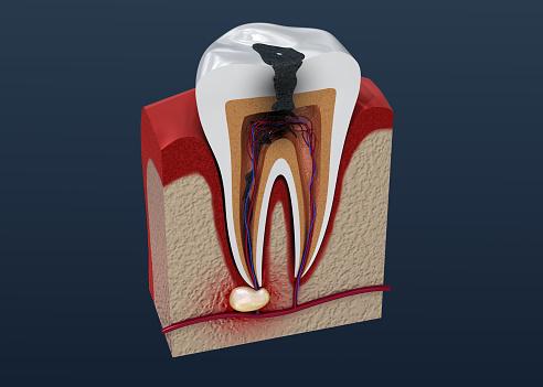 Tandbederf 3d Illustratie Stockfoto en meer beelden van Abces