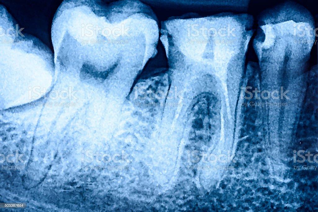 Fotografía de CaÍda De Piezas Dentales En Rayos X y más banco de ...