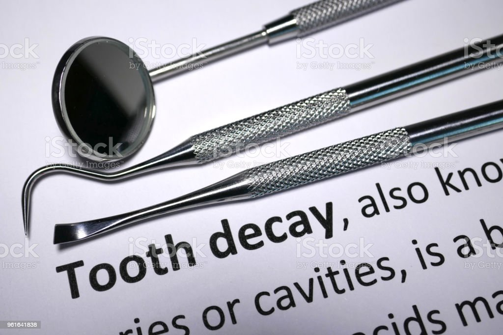 Tooth Decay stock photo