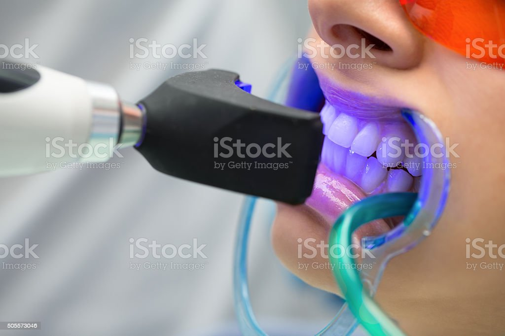 Tooth filling ultraviolet lamp stock photo