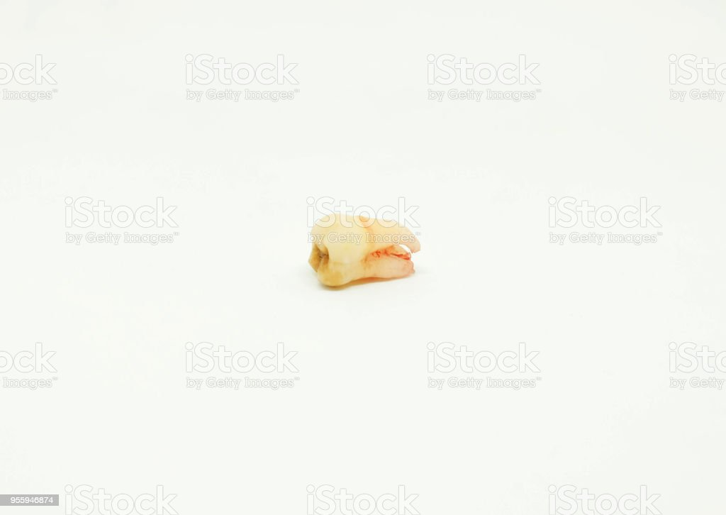 Tooth From Extraction On White Background Stock Photo & More