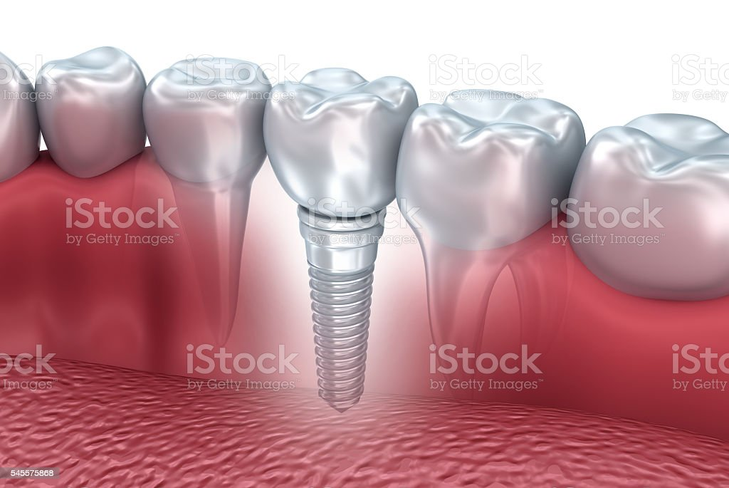 Tooth human implant, 3d illustration stock photo