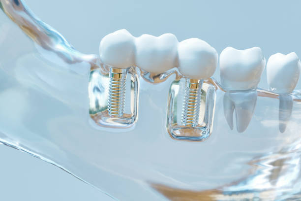 Tooth human implant - 3D Rendering Tooth human implant -- 3D Rendering implant stock pictures, royalty-free photos & images