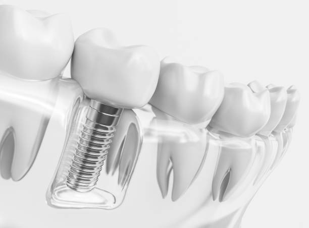 tooth human implant - 3d rendering - dental implants stock photos and pictures