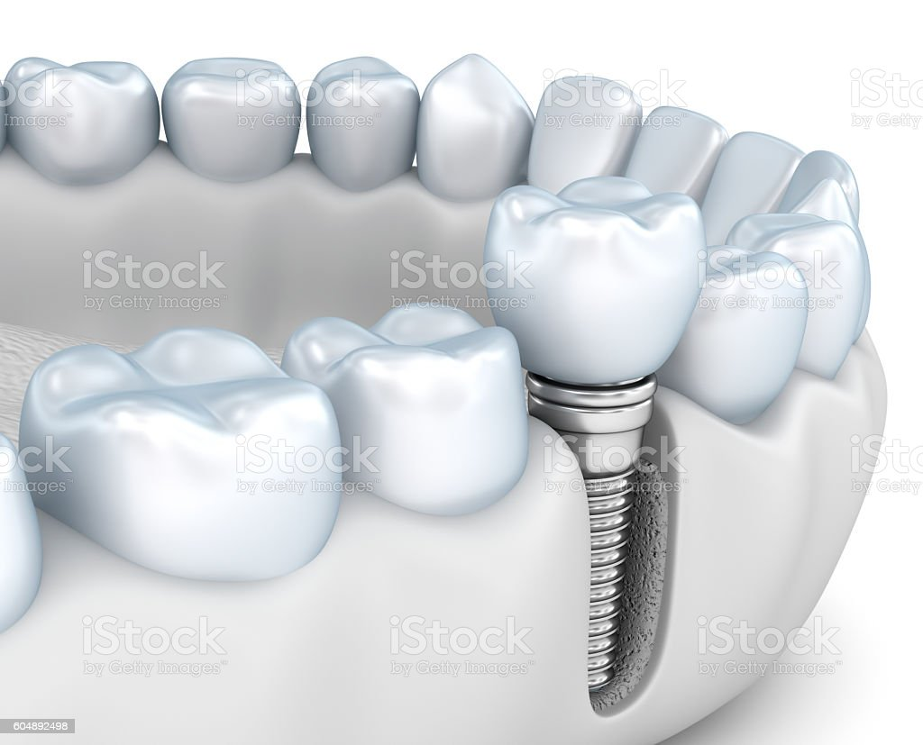 Tooth human implant, Medically accurate 3D illustration white style stock photo