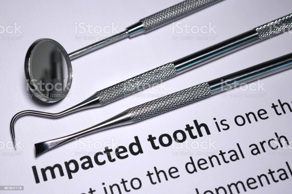 Tooth impaction stock photo