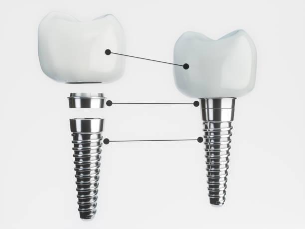 zahn-implantat zerlegt - 3d rendering - inlay zahn stock-fotos und bilder