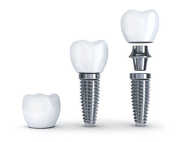 tooth implant disassembled - dental implants stock photos and pictures