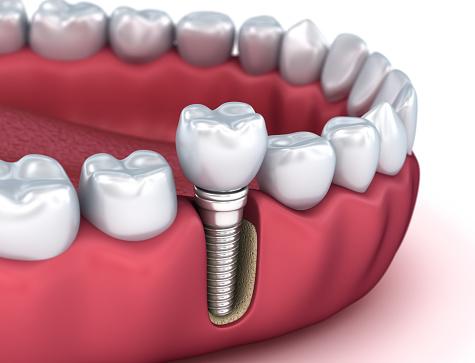 Tand Implantaat Instalation Proces Medisch Nauwkeurige 3d Illustratie Stockfoto en meer beelden van Chirurgie