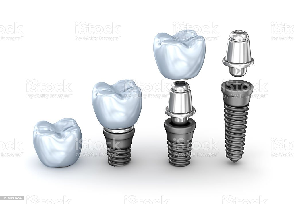 Tooth Implants set isolated on white background 3D illustration stock photo