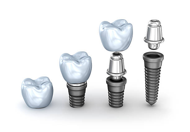tooth implants set isolated on white background 3d illustration - dental implants stock photos and pictures