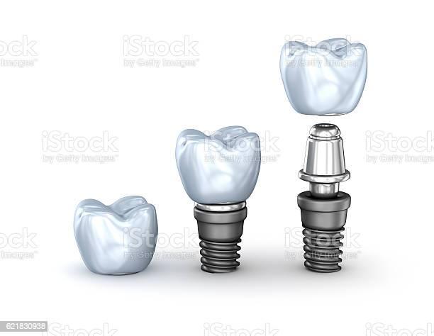 Tooth Implants Set Isolated On White Background 3d Illustration Stockfoto und mehr Bilder von Bausatz