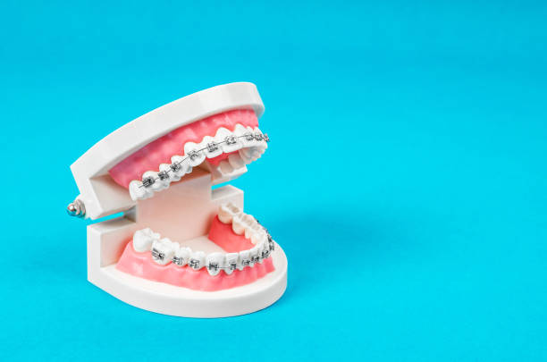 Tooth model with metal wire dental braces stock photo