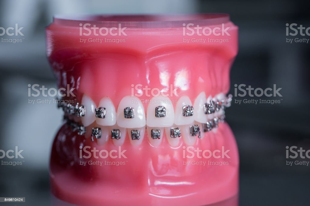 tooth model with metal wired dental braces stock photo