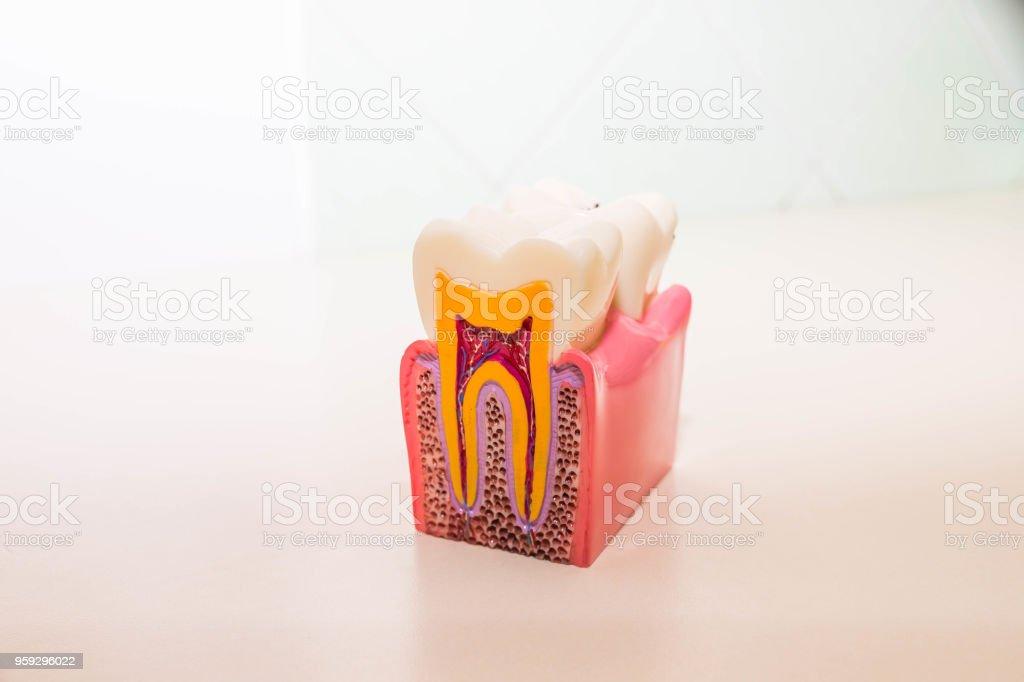 Zahn-Modell ohne Karies, Karies in Zahnarztpraxis. Gesunde Zähne-Konzept. Kinder Zahnarzt. Textfreiraum - Lizenzfrei Ausrüstung und Geräte Stock-Foto