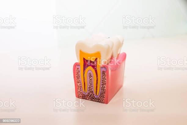 Zahnmodell Ohne Karies Karies In Zahnarztpraxis Gesunde Zähnekonzept Kinder Zahnarzt Textfreiraum Stockfoto und mehr Bilder von Ausrüstung und Geräte