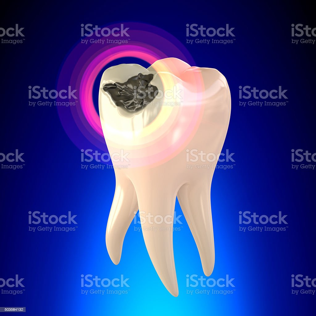 Tooth Molar with Dental Caries stock photo