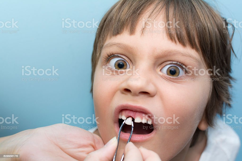 Tooth removal stock photo