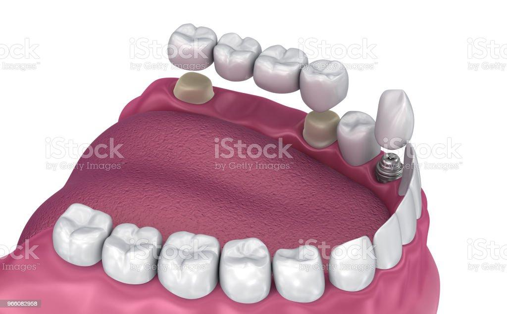 Fast bro, implantat och kronan stöds på tanden. Medicinskt korrekt 3D illustration - Royaltyfri Artificiell Bildbanksbilder