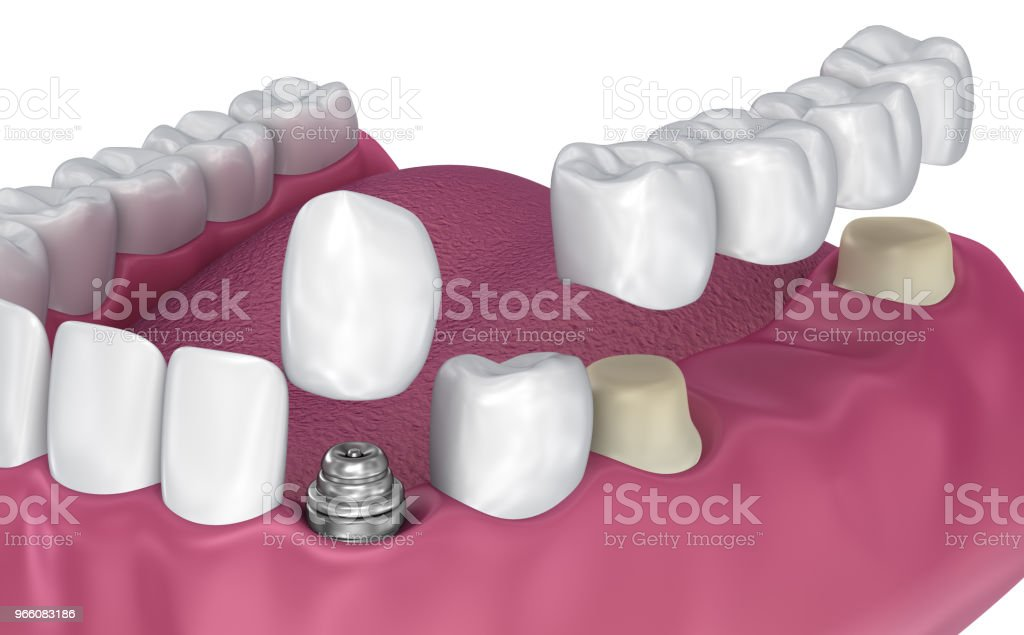 Tooth supported fixed bridge, implant and crown. Medically accurate 3D illustration - Royalty-free Artificial Stock Photo