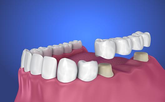 Tand Ondersteunde Vaste Brug Implantaat En Kroon Medisch Nauwkeurige 3d Illustratie Stockfoto en meer beelden van Afweren