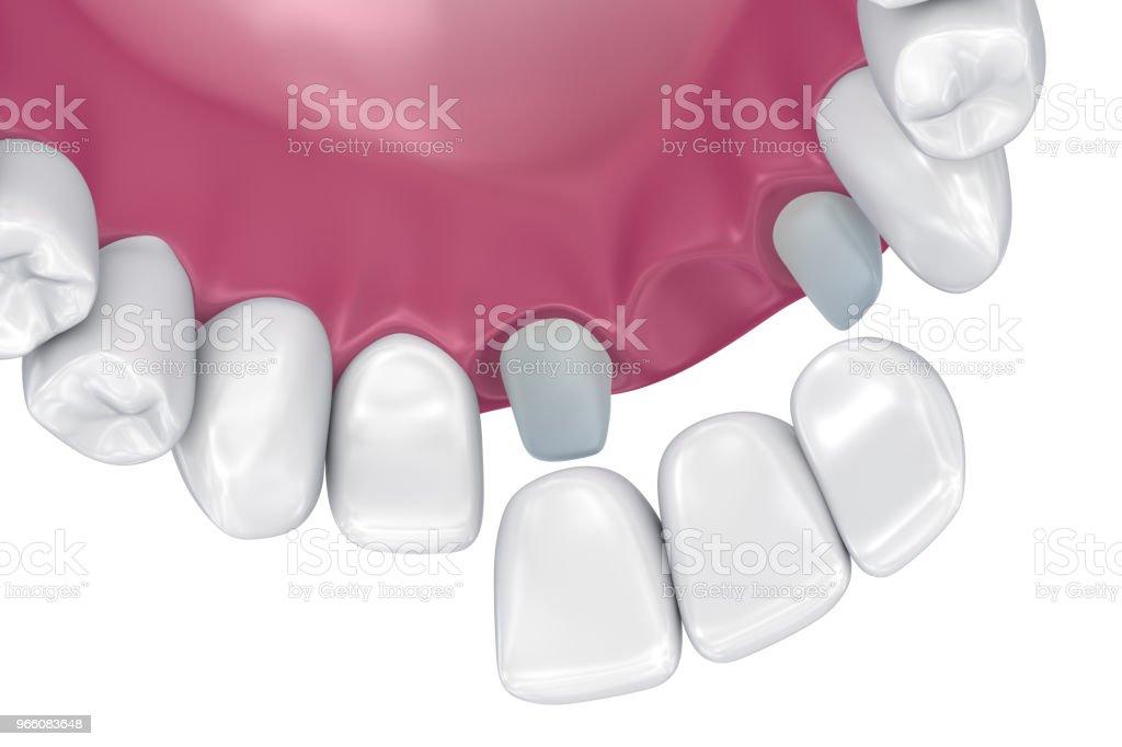 Tanden stöds fasta bron. Medicinskt korrekt 3D illustration - Royaltyfri Artificiell Bildbanksbilder