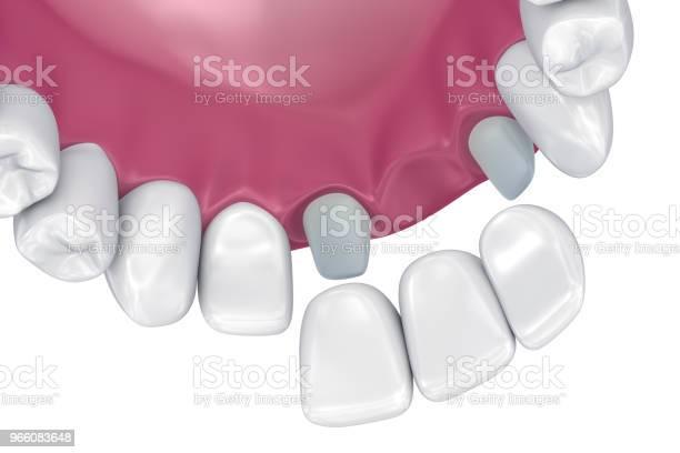 Tanden Stöds Fasta Bron Medicinskt Korrekt 3d Illustration-foton och fler bilder på Artificiell