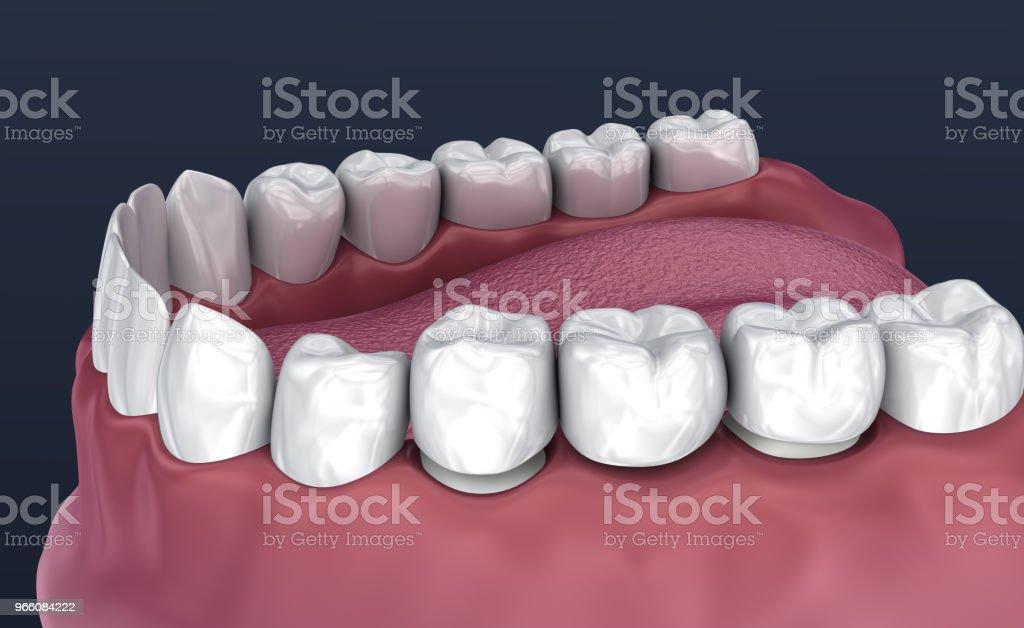 Tand ondersteund vaste brug van 3 tanden. Medisch nauwkeurige 3D illustratie - Royalty-free Afweren Stockfoto