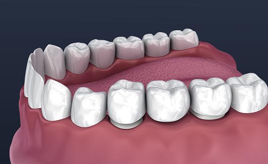 Tand Ondersteund Vaste Brug Van 3 Tanden Medisch Nauwkeurige 3d Illustratie Stockfoto en meer beelden van Afweren