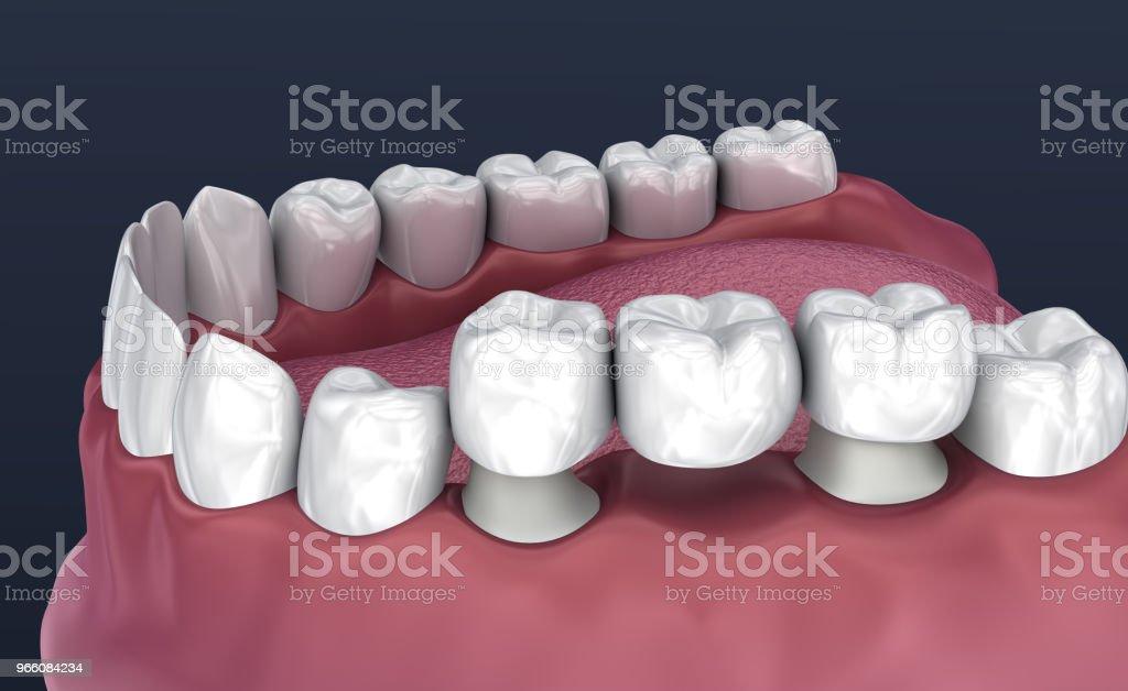 Tanden stöds fasta bron 3 tänder. Medicinskt korrekt 3D illustration - Royaltyfri Artificiell Bildbanksbilder