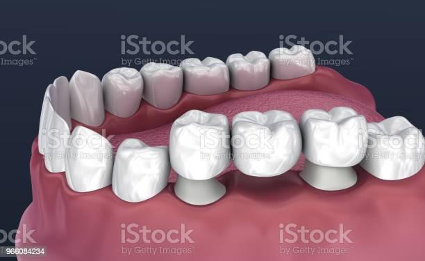 Tanden Stöds Fasta Bron 3 Tänder Medicinskt Korrekt 3d Illustration-foton och fler bilder på Artificiell