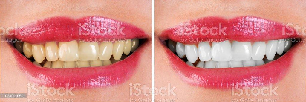 Foto De Branqueamento Dentario Antes E Depois E Mais Banco De