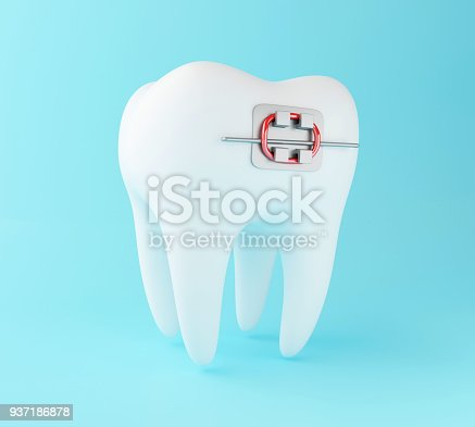 istock 3D Tooth with braces. 937186878