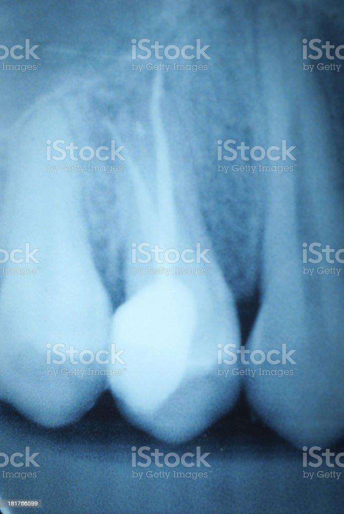 Fotografía de Película De Radiografía Dental y más banco de imágenes ...