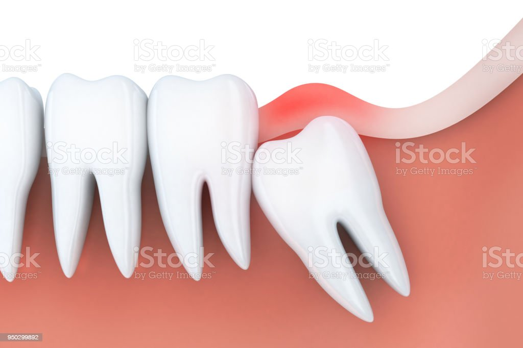Toothache in wisdom tooth stock photo