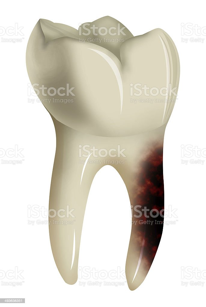 toothache isolated on white background stock photo