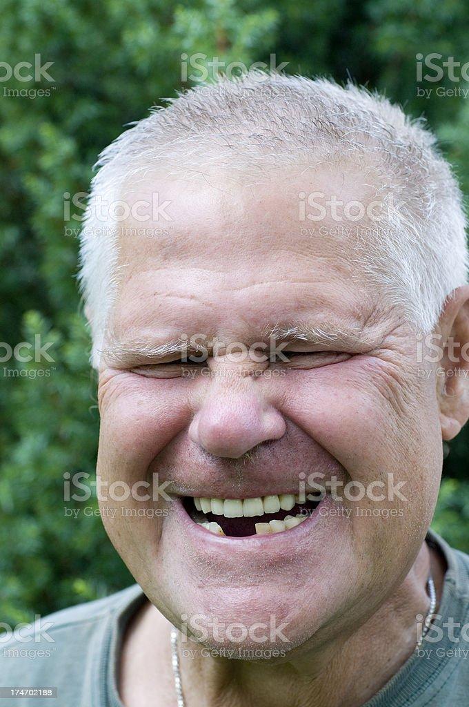 Toothgap royalty-free stock photo