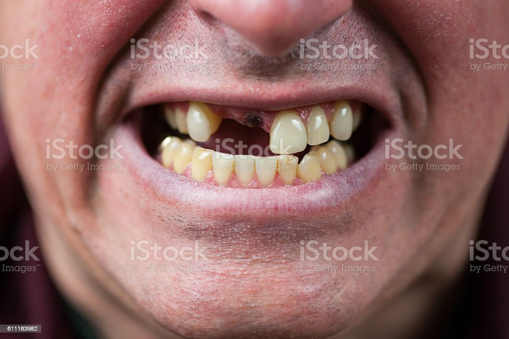 Toothless Man stock photo