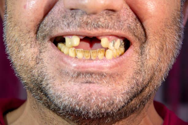 이빨이 없는 사람, 노란색 치아와 웃는 사람 - 악한 뉴스 사진 이미지