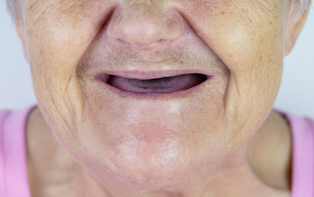 Toothless mouth. An elderly woman with no teeth. Old Granny with her mouth open. stock photo