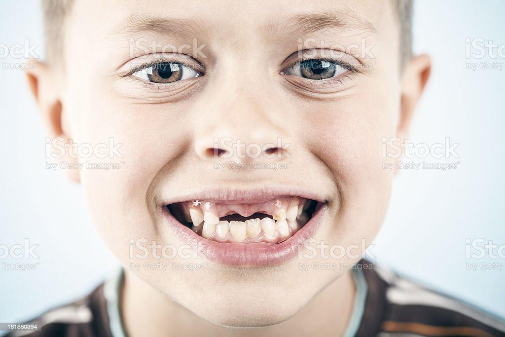 Toothless smile royalty-free stock photo