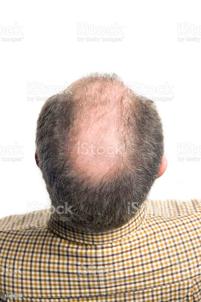 top view of a balding mans head royalty-free stock photo