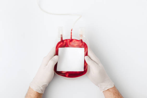 top view of hands in gloves holding blood for transfusion stock photo