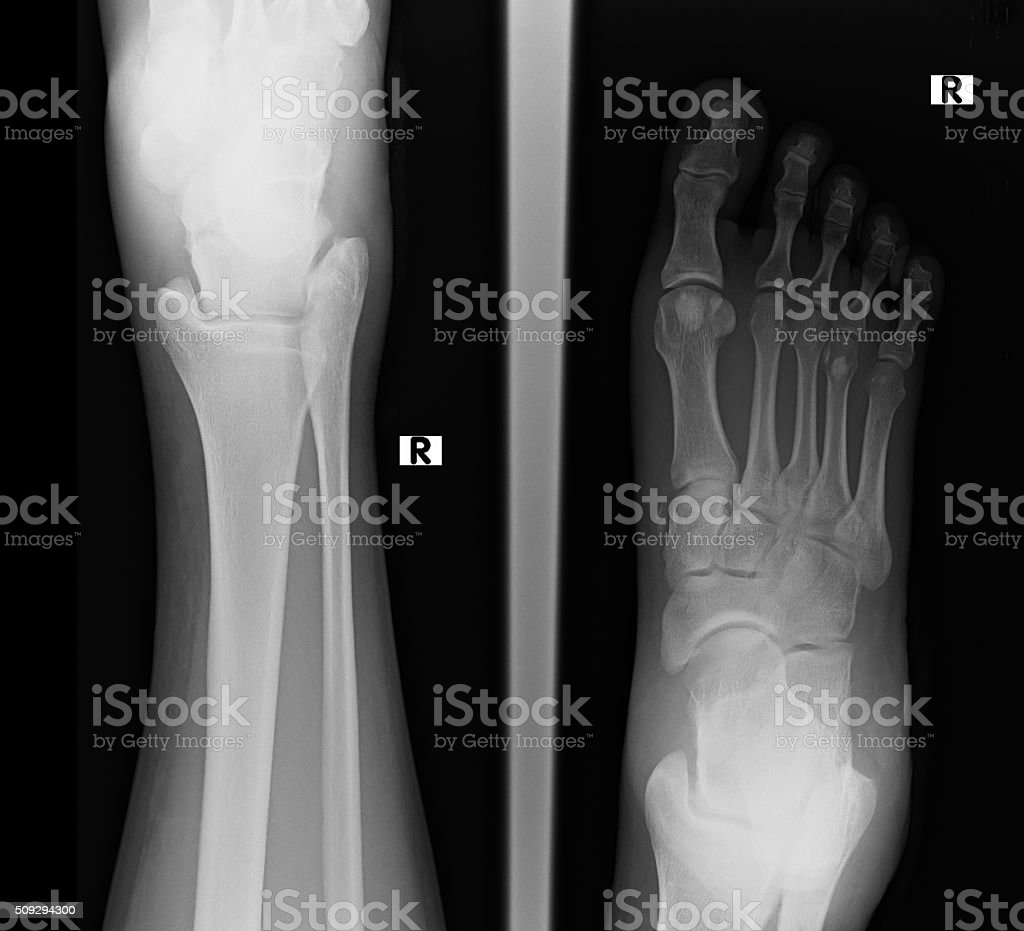 Top View Of Humans Feet Bones Under Xray Stock Photo & More Pictures ...