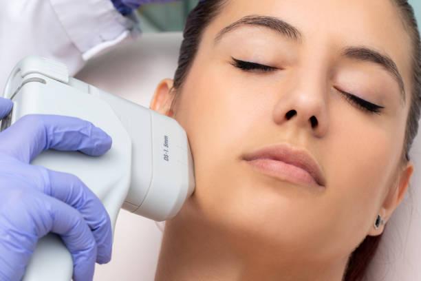 Top view of woman having facial hifu energy treatment. stock photo